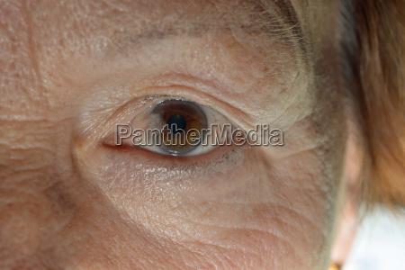 sore throat disease in one eye
